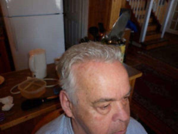 Remplacement capillaire - men hair pieces