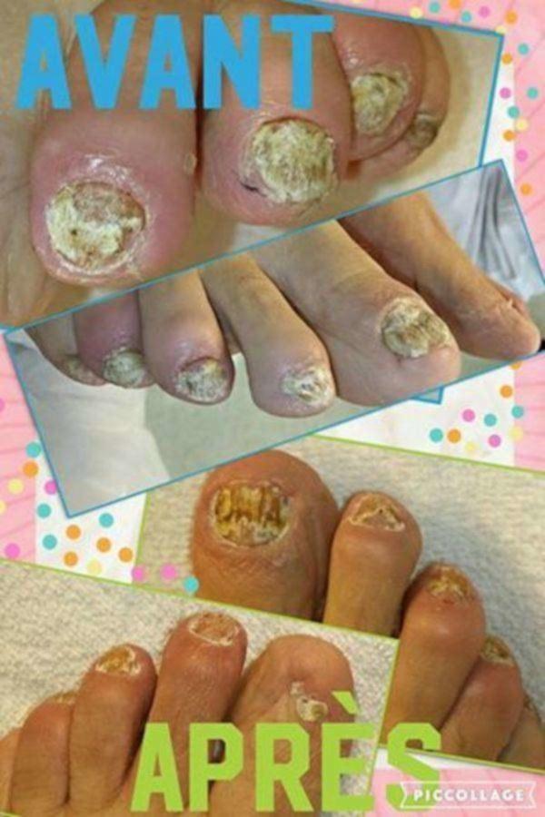 image annonce Soins podologiques (soins des pieds)