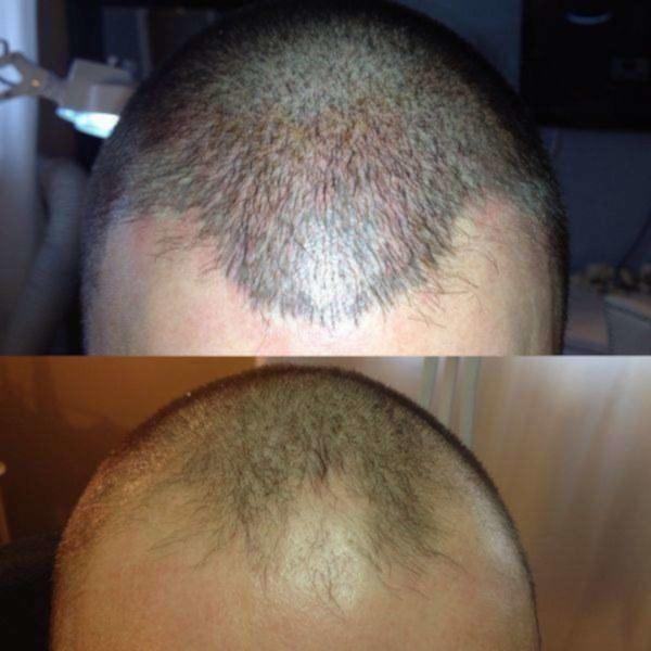 image annonce Perte de cheveux? Résultats immédiats, sans douleur et abordable!